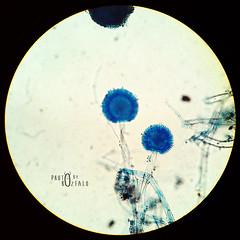 Aspergillus niger (bozfalo) Tags: fungi microscopic microscope bfl lpcb aspergillus