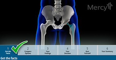 92130241 (Mercy Images) Tags: artificialjoint artificial prostheticequipment femur hipreplacement pelvis xray metal xrayimage humanspine hip artificiallimb implant