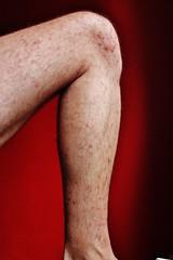 rash (Chris loves photography) Tags: selfportrait leg rash diary2013