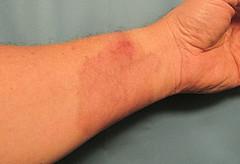 All Healed (Eyellgeteven) Tags: arm injury burn injured wound healed scar scars chemicalburn draincleaner alkaliburn pain lyeburn skin flesh burnt burned disfigured eyellgeteven