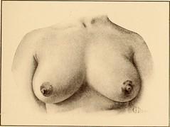 Anglų lietuvių žodynas. Žodis febrile reiškia a drugio; karštligiškas lietuviškai.