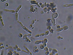 GI sophie (Bryan    Doty) Tags: wild home beer brewing images micro yeast sour brew microscope bacteria cantillon drie fonteinen brettanmonyes