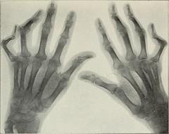 Anglų lietuvių žodynas. Žodis roentgen ray reiškia rentgeno spinduliai lietuviškai.