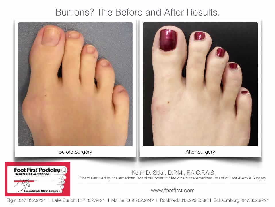 The World S Best Photos Of Bunion And Bunions Flickr