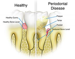 KDENT-Periodontal-01