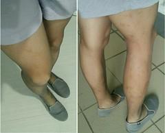 Poise support pantyhose, grey, with Uniqlo women's grey relaco shorts. (leodumlao) Tags: poisepantyhose 20denier supportpantyhose meninpantyhose greypantyhose hoseandshorts