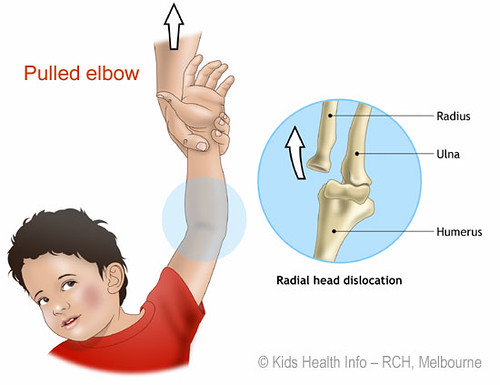Pulled_elbow_KHI_RCH