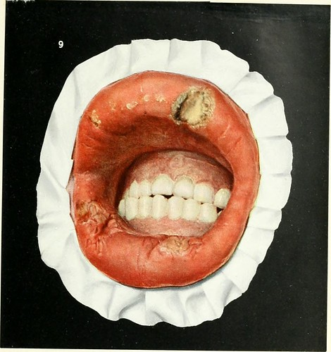 """Image from page 118 of """"Diseases of the mouth; for physicians, dentists, medical and dental students"""" (1912)"""