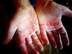 19 July (southwesley) Tags: hands fingers bouldering 365 damaged 365project thhn boulderbunker 3652014