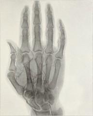 Anglų lietuvių žodynas. Žodis arterial reiškia a 1) išsišakojęs; 2) arterinis lietuviškai.