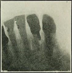 Anglų lietuvių žodynas. Žodis pivot-tooth reiškia pasukamasis dantis lietuviškai.
