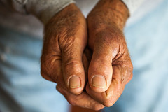 Dad's Hands (Thomas Hawk) Tags: america bigtujungacanyon california losangeles ranchoybarra rocky rockypeterson tujunga usa unitedstates unitedstatesofamerica dad hands thumb toe transplant fav10 fav25 fav50