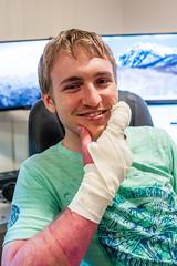 #165 Injury (Tristan#) Tags: finger injury pondering bandages