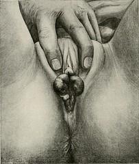 Anglų lietuvių žodynas. Žodis vaginitis reiškia vaginitas lietuviškai.
