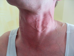 my thick front vein of my neck (Flue2010) Tags: neck veins