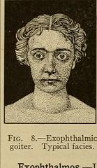 Anglų lietuvių žodynas. Žodis thrombosis reiškia med. trombozė; a coronary thrombosis infarktas lietuviškai.