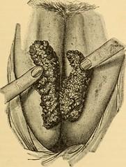 Anglų lietuvių žodynas. Žodis vulval reiškia vulgaris lietuviškai.
