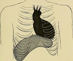 Anglų lietuvių žodynas. Žodis rheumatic heart disease reiškia reumatinės širdies ligos lietuviškai.