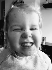 Day 60 (JoRoSm) Tags: candid kid child children toddler bw black white blackandwhite mono monochrome laughing teeth eyes shut closed girl female chickenpox pox sgs7 androidography portrait portraiture people person human