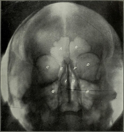 """Image from page 126 of """"Elementary and dental radiography"""" (1813)"""