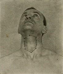 Anglų lietuvių žodynas. Žodis laryngectomies reiškia laringektomijos lietuviškai.