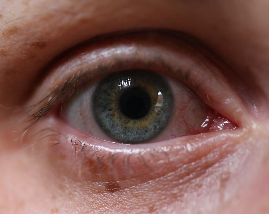 plica semilunaris swollen eye allergies - HD1024×815