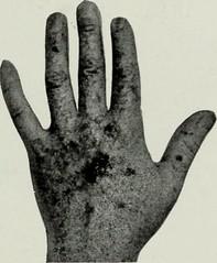 Anglų lietuvių žodynas. Žodis squamous cell carcinoma reiškia suragėjusių ląstelių karcinoma lietuviškai.