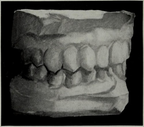 "Image from page 707 of ""The Dental cosmos"" (1914)"
