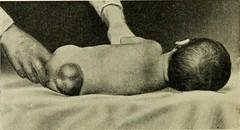 Anglų lietuvių žodynas. Žodis meningoceles reiškia <li>meningoceles</li> lietuviškai.
