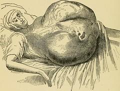 Anglų lietuvių žodynas. Žodis sarcomatous reiškia sarkomatiška lietuviškai.