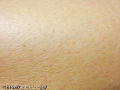 レーザー脱毛器「アイエピ(i-epi )」での肌経過写真2